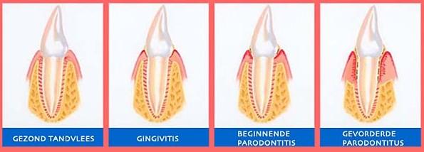 Parodontis